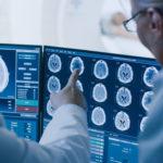 Upskill radiographers to tackle the cancer backlog